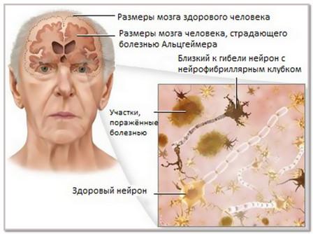 Причины возникновения болезни