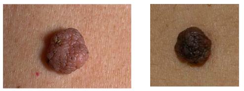 Внутридермальный невус кожи