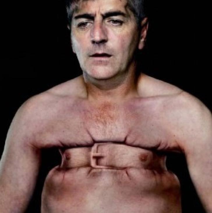 боли в грудной клетке картинки