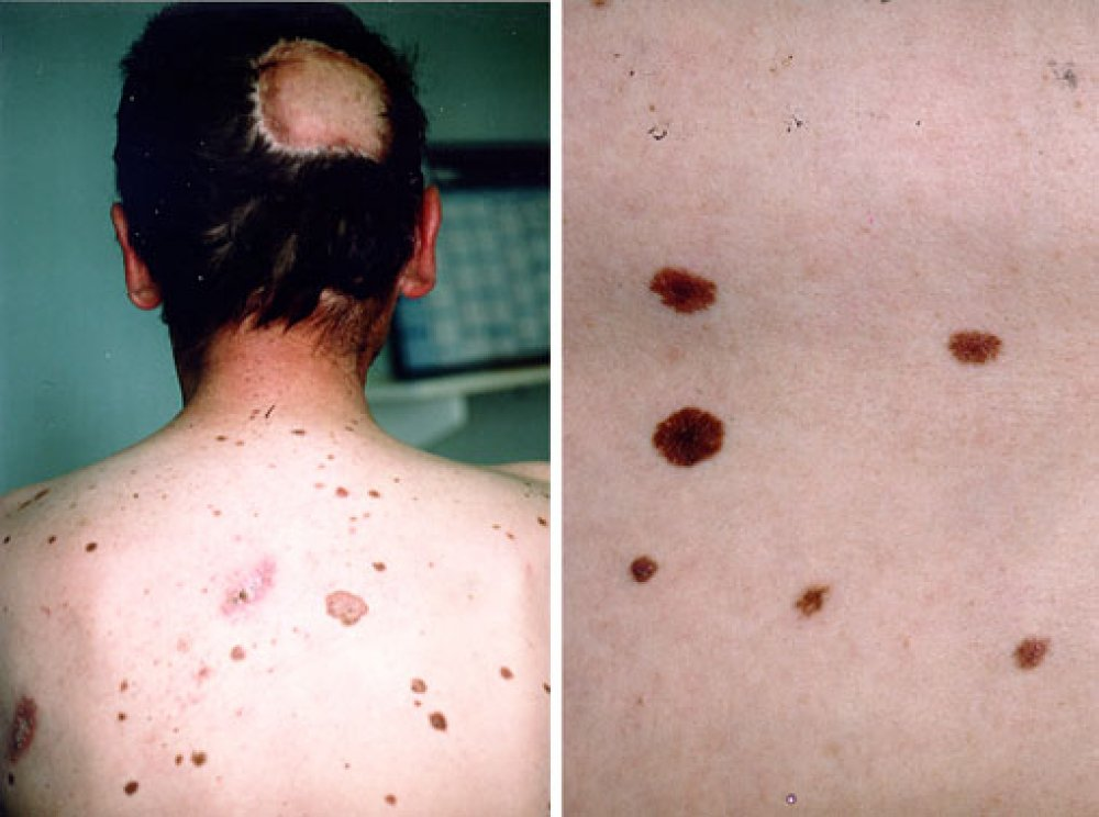 Malignant-Moles-Pictures-3
