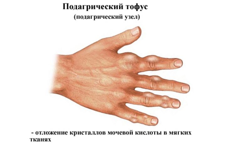 подагра и остеохондроз