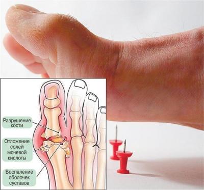 Симптомы подагрического артрита