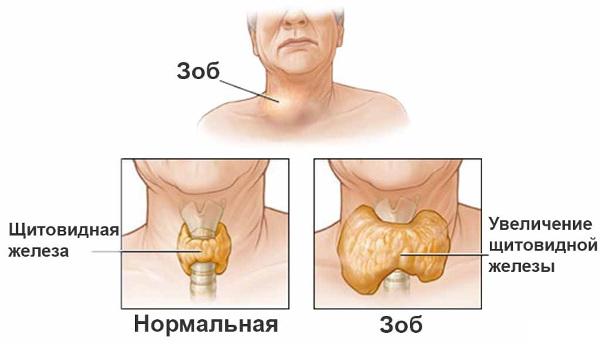 Симптомы диффузного токсического зоба