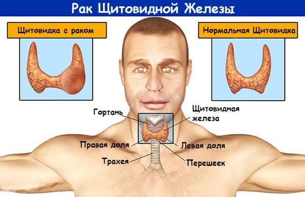 симптомы рака щитовидной железы