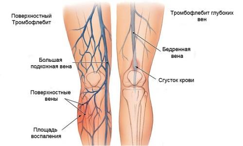Причины развития тромбофлебита