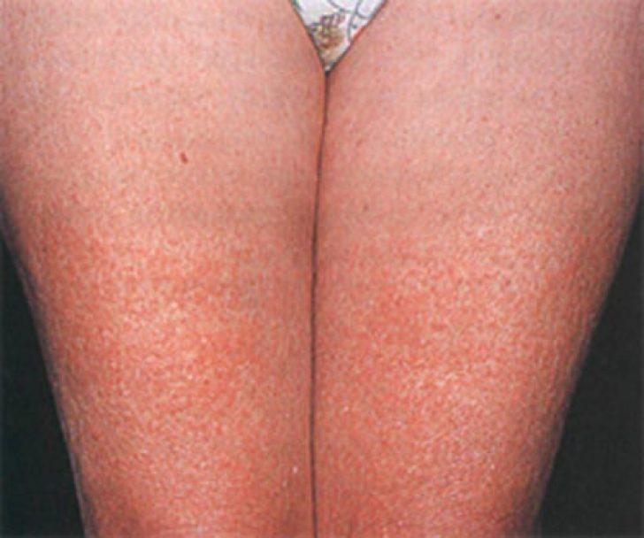 аллергия на ногах как лечить