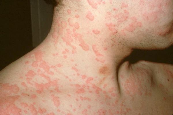 allergiya-na-moroz-2