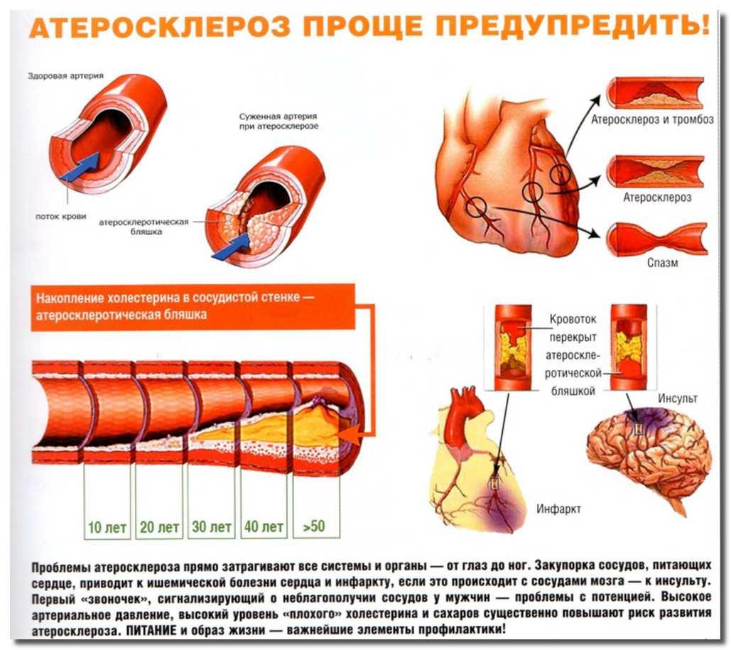 Роль атеросклероза в развитии инфаркта