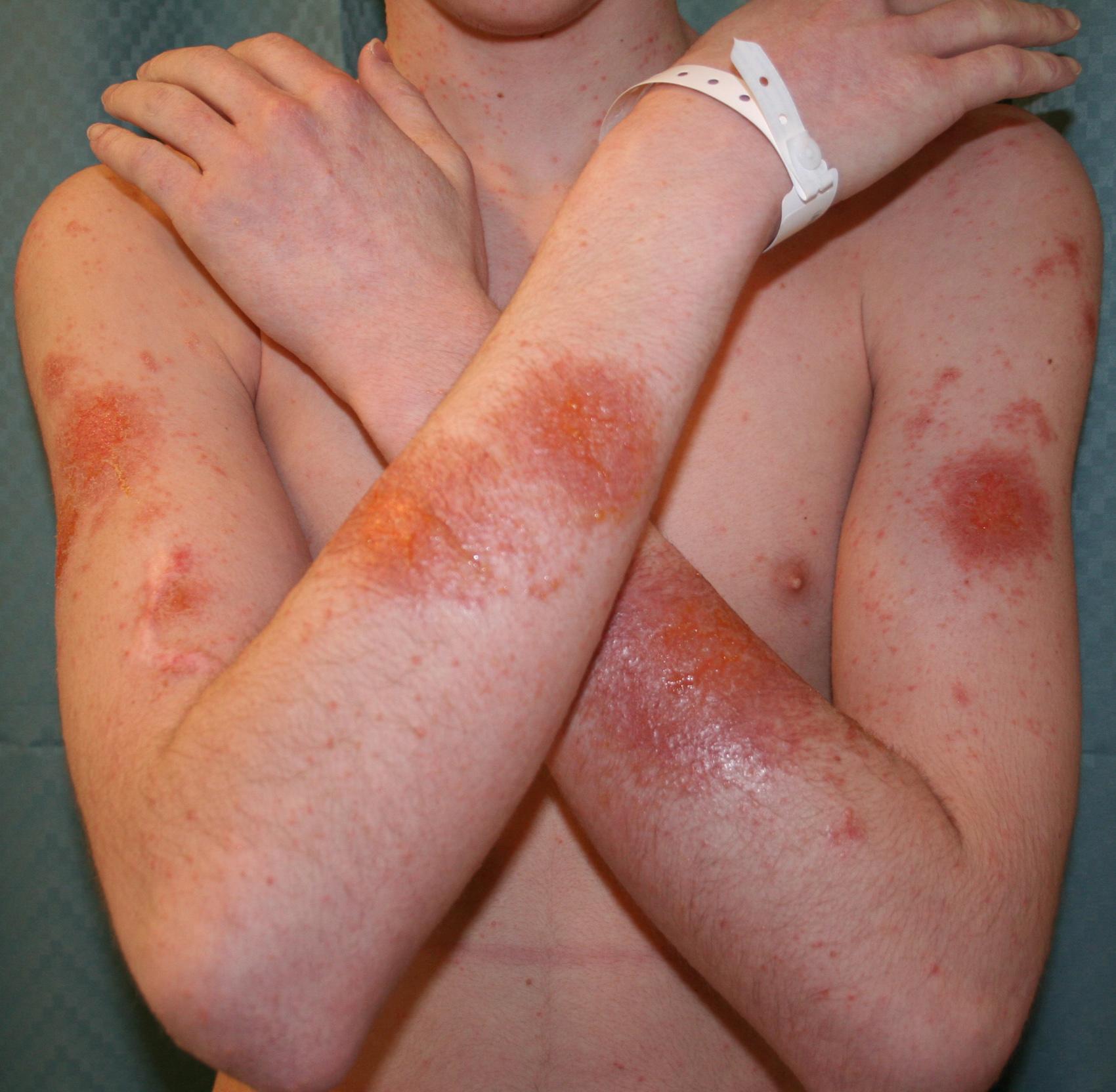 Клинические проявления контактной аллергии