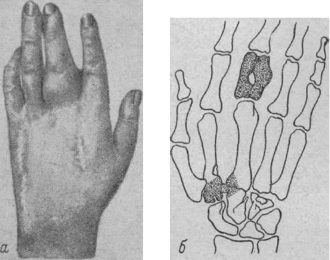 Симптомы остеомиелита