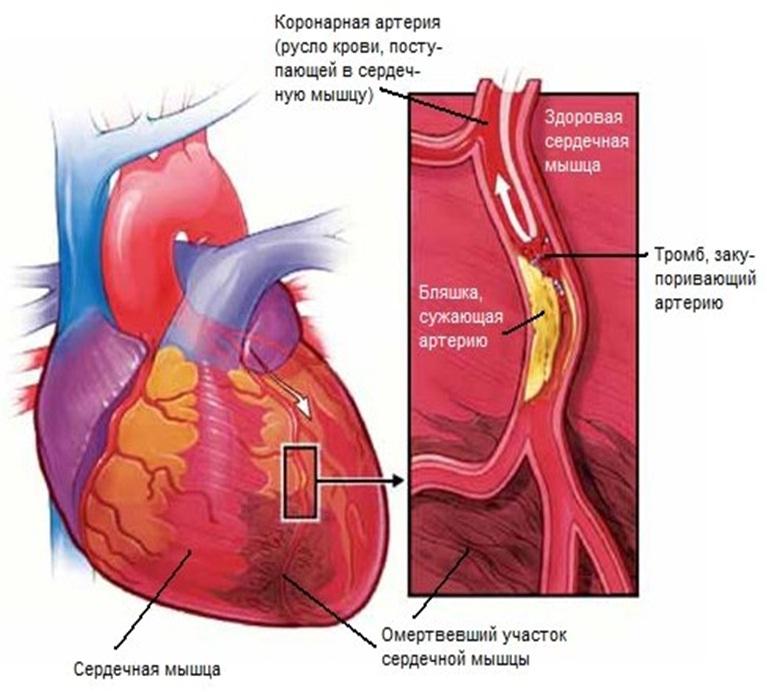 Болезнь инфаркт миокарда: причины симптомы первая помощь лечение