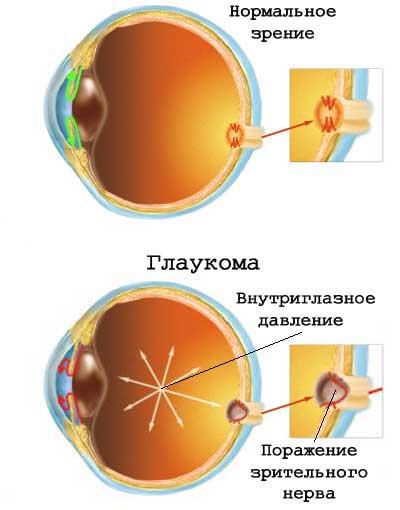 glaukoma2