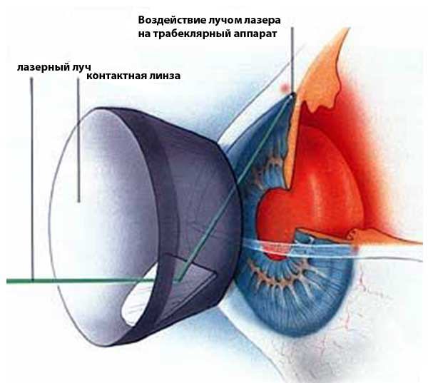 glaukoma3-3