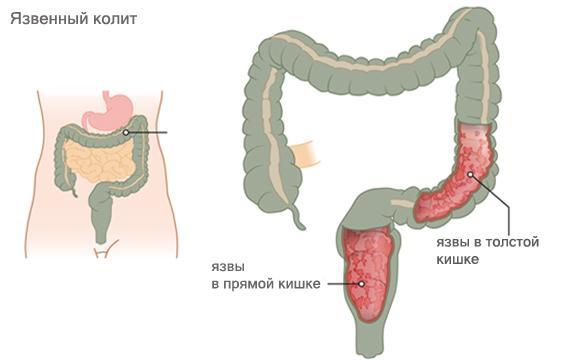 Белый налет на губах у взрослых причина и лечение