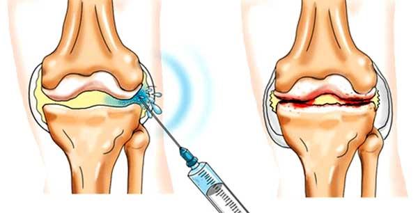 Методы лечения остеомиелита