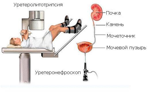 kontaktnaya-transuretralnaya-ureterolitotripsiya