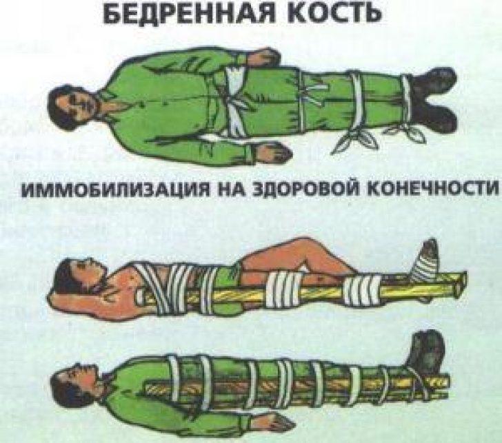 суставы должна фиксировать шина при переломе бедра