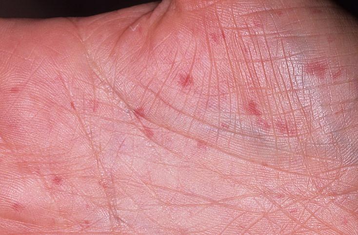 Поражения кожных покровов и сосудов