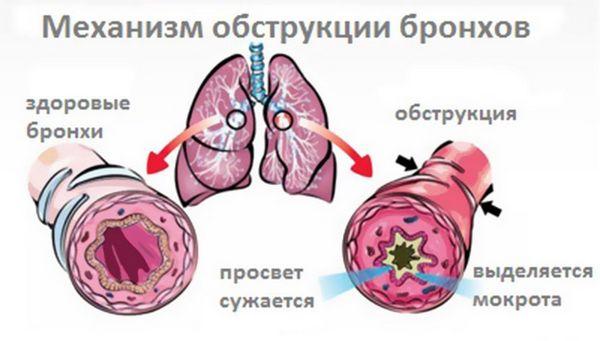 shema-mehanizma-zbolevanija