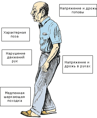 simptomi-bolezni-Parkinsona (1)