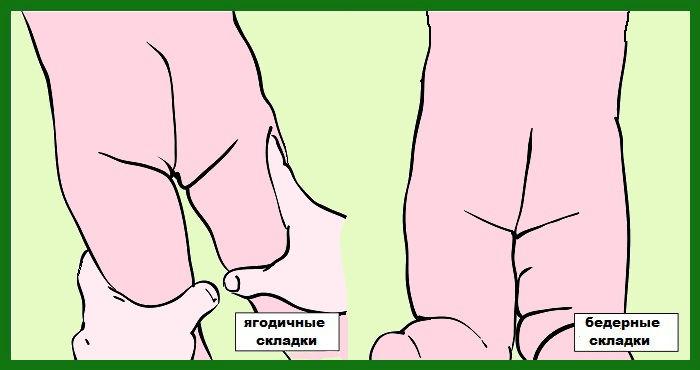Разные складки на ногах у детей 44