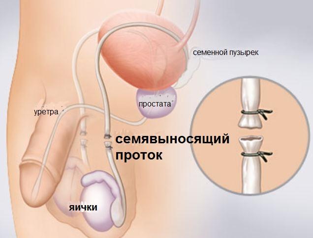 контрацепция методом вазэктомии