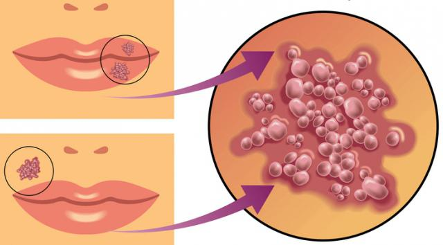Вирус герпеса симптомы фото 417-757