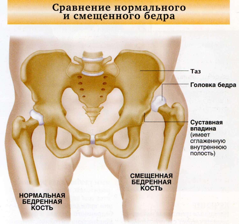 уз исследование суставов