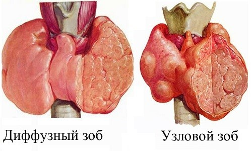 zob6-500x300