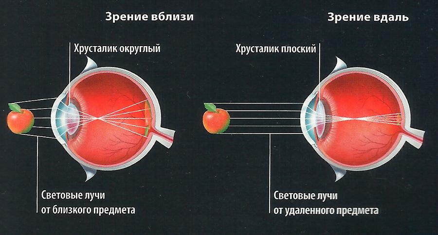 Глаз дефект зрения.исправление зрения