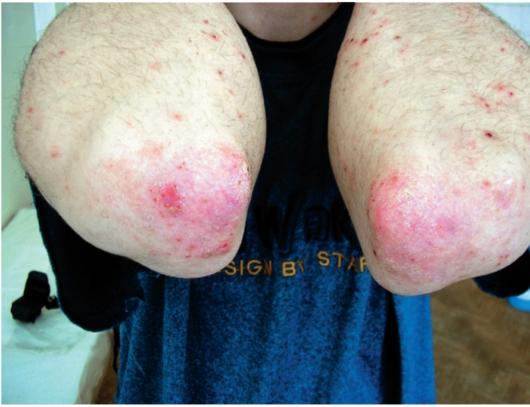 Симптомы типичной чесотки