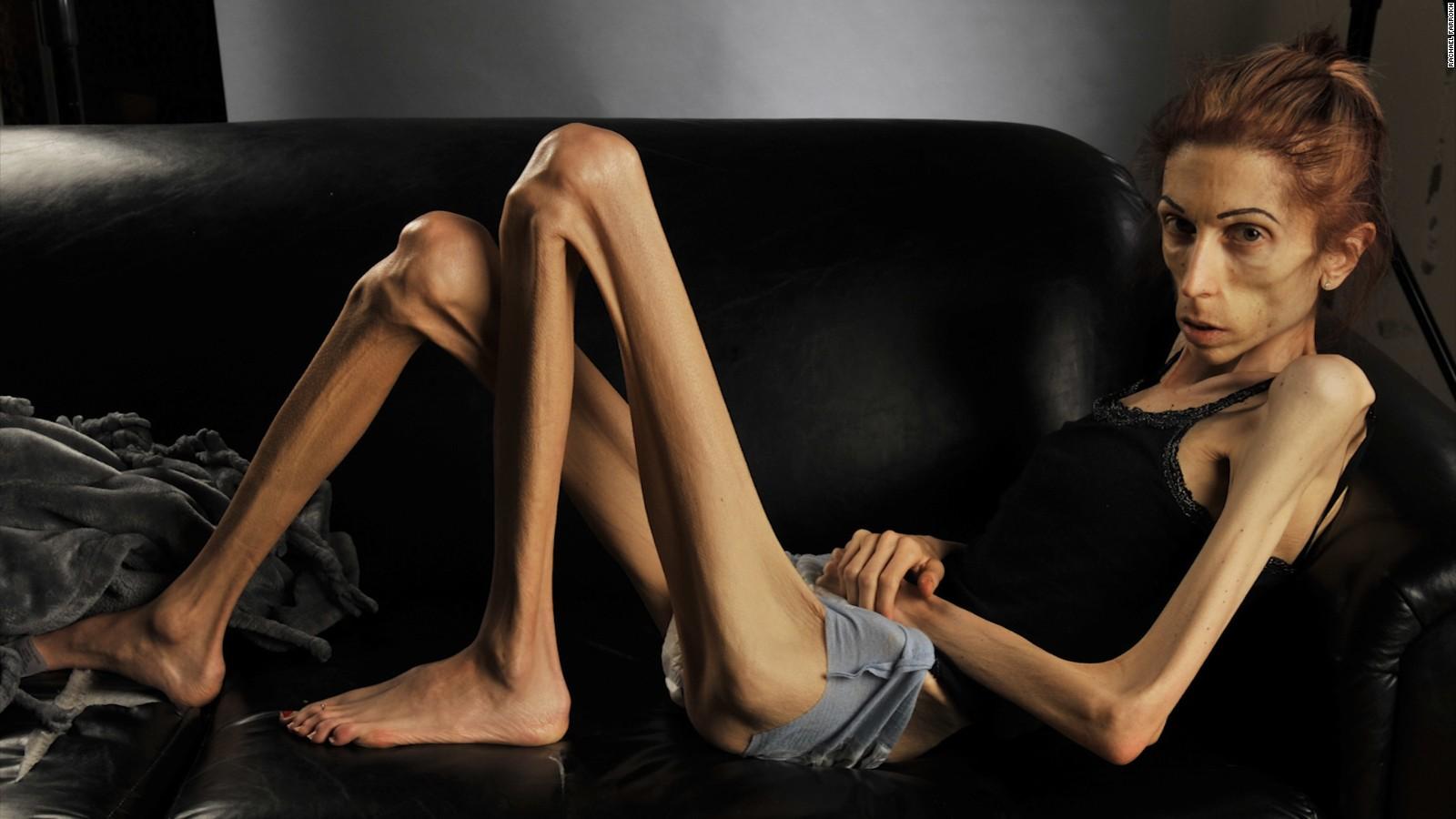 Клинические симптомы анорексии
