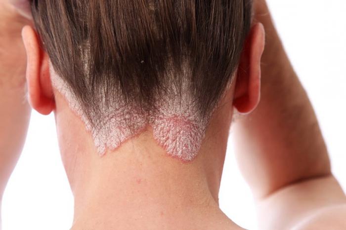 Себорейный дерматит кожи головы фото