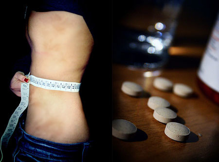 Медикаментозные методы лечения анорексии