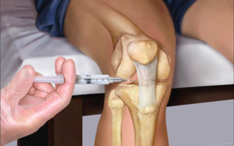 Ревматический артрит симптомы лечение