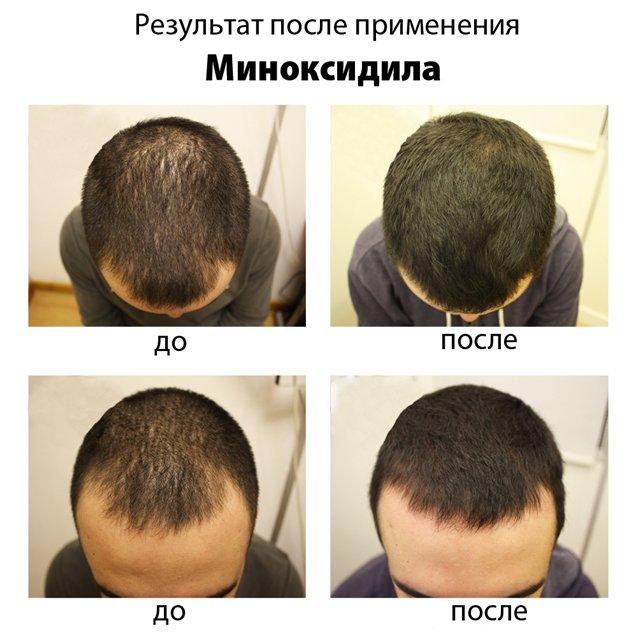 Эффективное восстановление волос после осветления