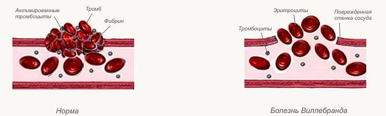 Болезнь Виллебранда: причины, симптомы, методы диагностики и ...
