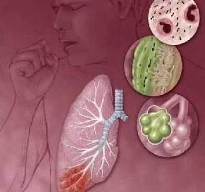 Пневмония пневмоцистного характера