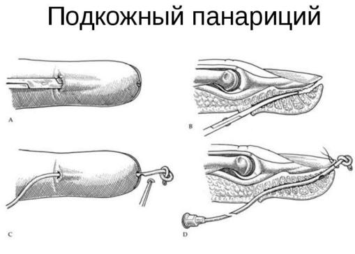 Image 2611