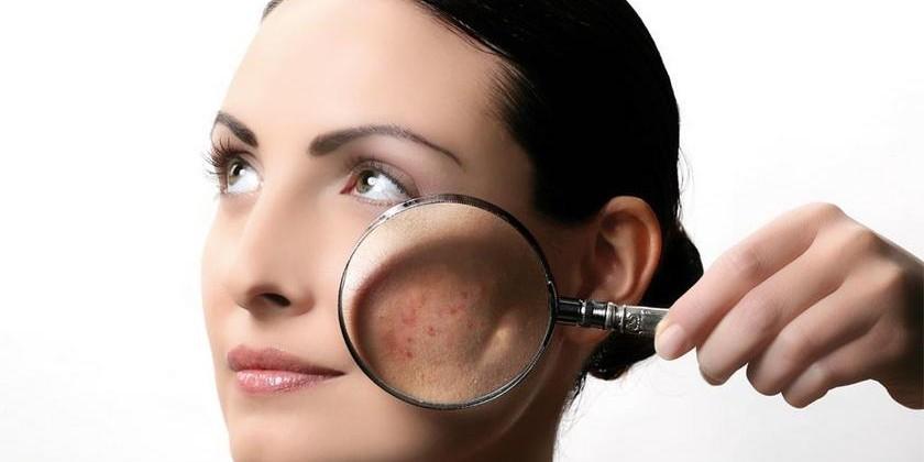 Лечение себорейного дерматита