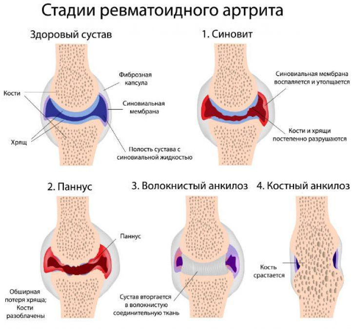 Ревматоидный артрит реферат
