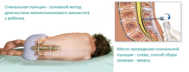analizy-pri-meningokokkovoj-infekcii