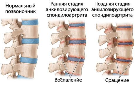 Симптомы анкилозирующего спондилоартрита