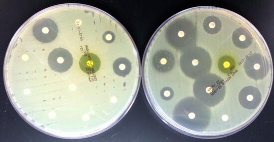 Как лечить золотистый стафилококк