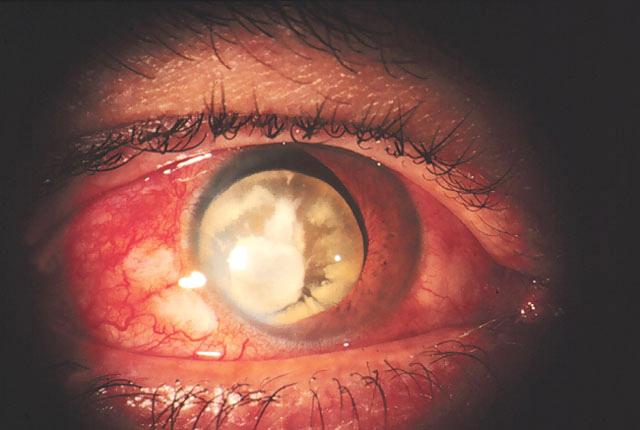 Повреждения глазного дна