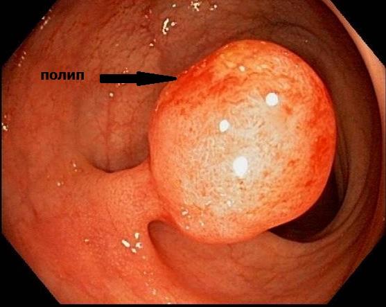 Диагностика полипов кишечника