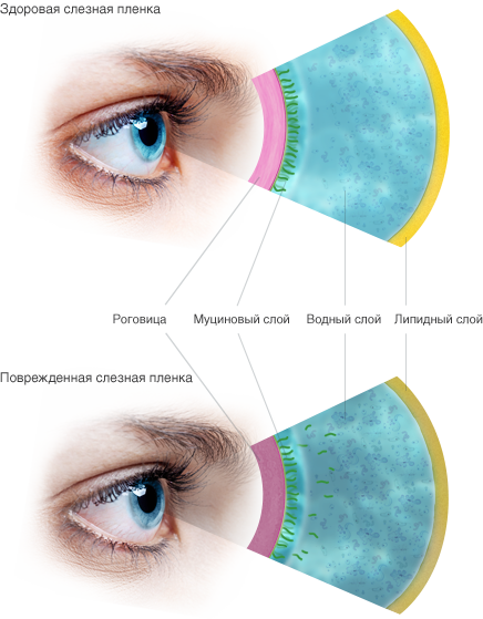 Причины синдрома «сухого глаза»