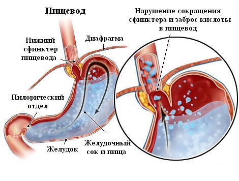 Рефлюксы физиологические и патологические