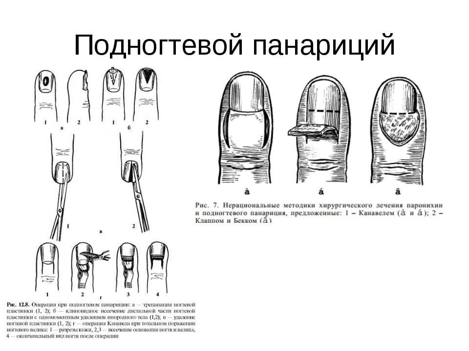 Лечение панариции в домашних условиях