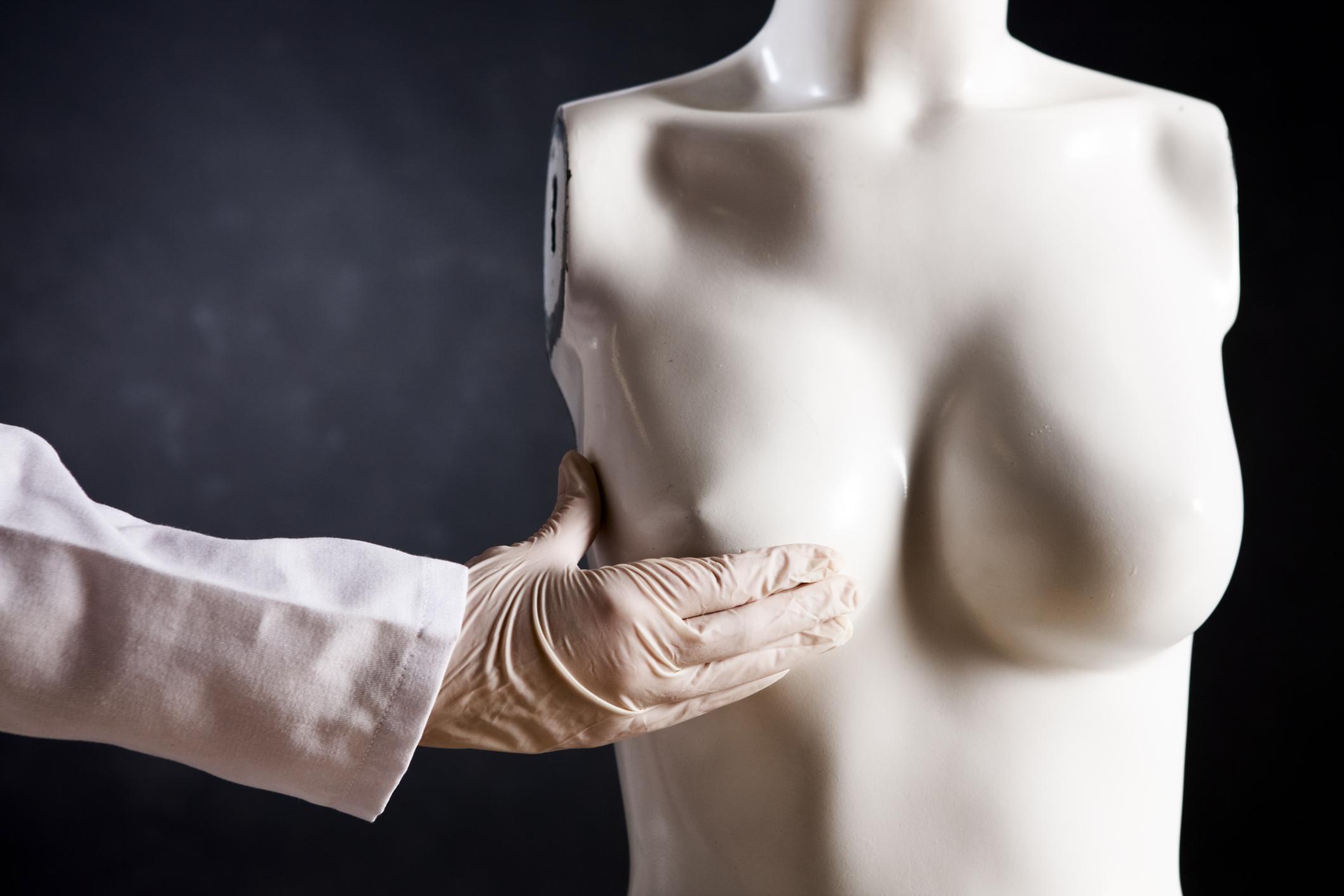 Рак молочной железы: разновидности и признаки